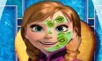 Anna Frozen Reforma