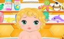 Assaduras de Bebê